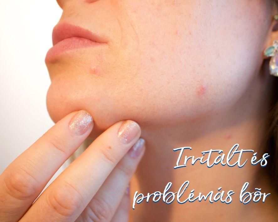 Irritált és problémás bőr